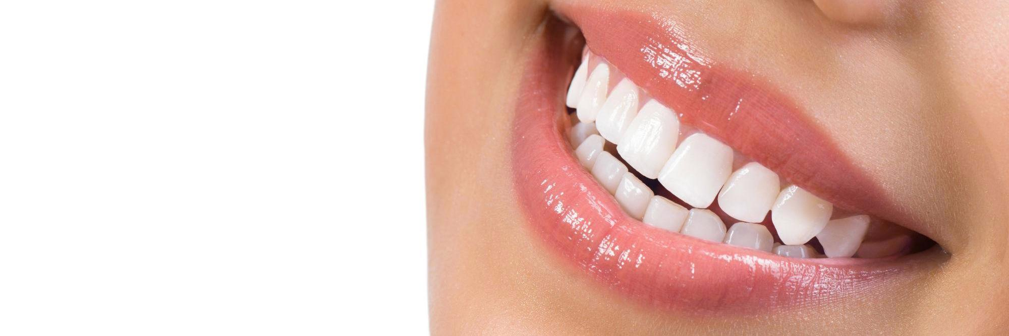 Tooth-Colored Dentistry at Hamilton Mill banner image